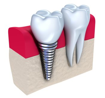 Round Rock Dental Implants